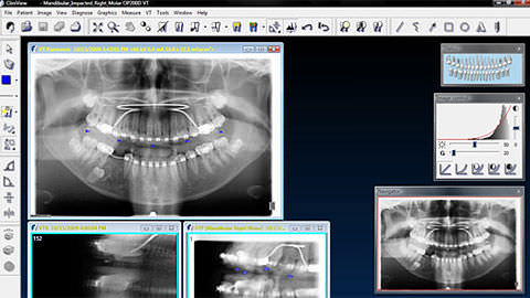 CliniView Imaging Software
